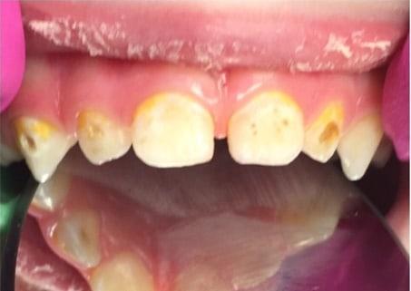 Лечение кариеса с восстановлением коронок зубов фотополимерами.