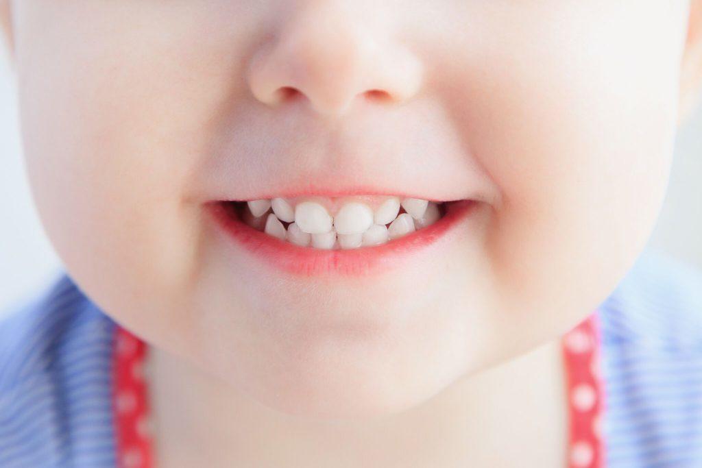 Фторирование детских зубов в Омске