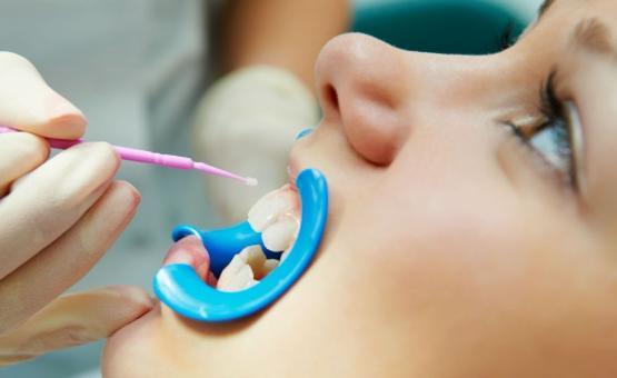 Глубокое фторирование детских зубов в Омске